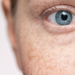 Cosmedix Clinic Pigmentation Clearance