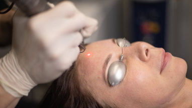 Carbon Soft Laser Peel Acne Treatment at Cosmedix Clinic Parramatta
