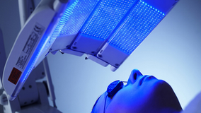 LED IPL Blue Light Photo-therapy Blue Light Acne Treatment at Cosmedix Clinic Parramatta