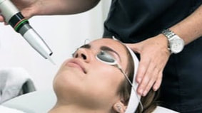RF Dermasys Intra-Dermal Remodelling Acne Treatment at Cosmedix Clinic Parramatta